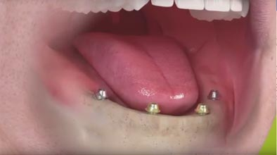 Dental implant dentures video