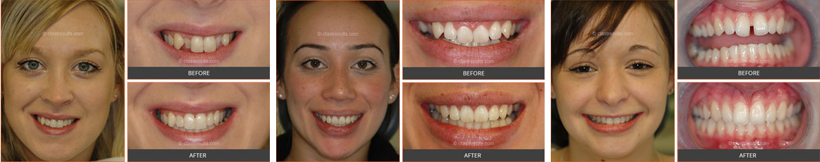before and after cfast braces
