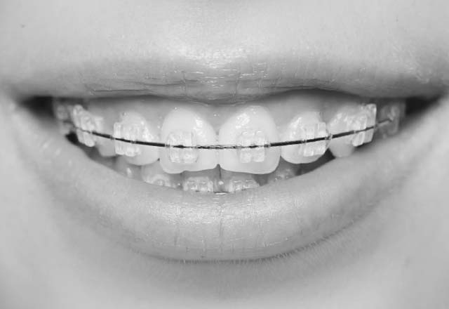 tooth-coloured-fixed-braces