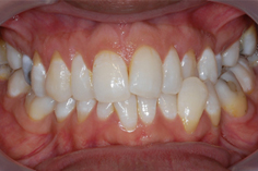 In-Ovation Braces - Case Study