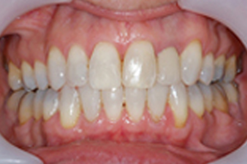 Tooth Whitening - Case Study